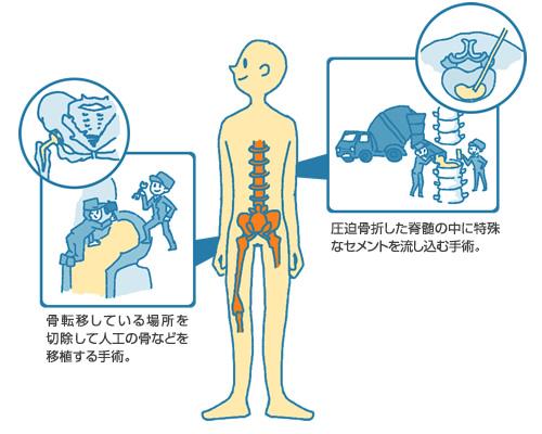 骨転移に対する手術 | そのほか...