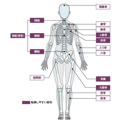 前立腺 が ん 骨 転移 余命