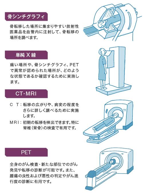 線検査を行い、骨転移の場所がどこか、どのような状態にあるかを調べます。 さらに詳しく調べる際にCT・MRIの検査を行います。